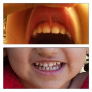 photo 1 300x300 Discovering And Correcting Lip Tie On A Toddler And An Infant