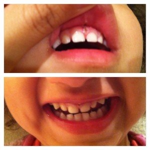 photo 3 300x300 Discovering And Correcting Lip Tie On A Toddler And An Infant