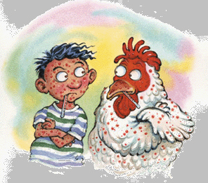 Chickenpox Party … Would You?