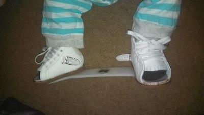 clubfoot braces