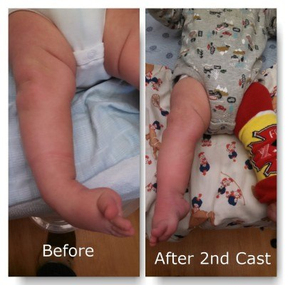 clubfoot after casts