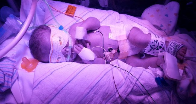 What It is Really Like: A Baby in the NICU
