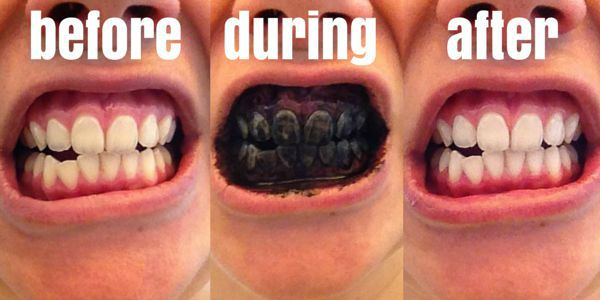before after whitening