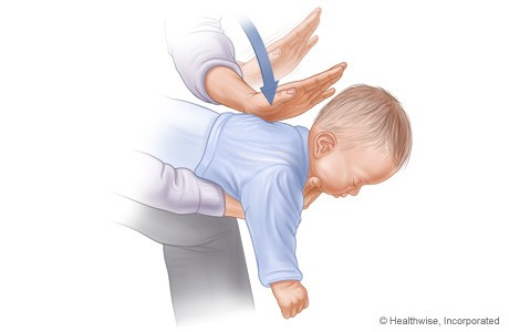 Baby/Toddler Choking: What To Do in an Emergency