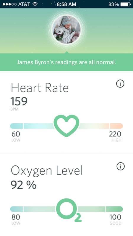 owlet smart sock reviews