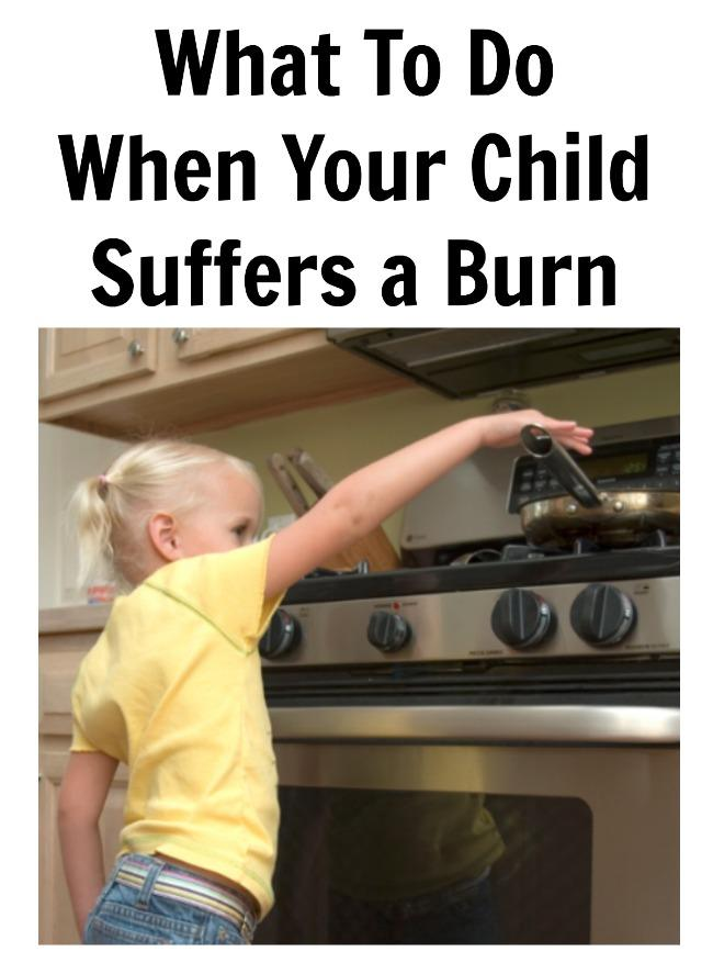 What To Do When Your Child Suffers a Burn