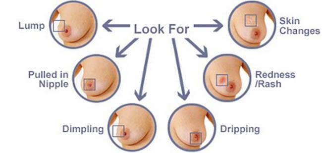 Breast Self Exam look for