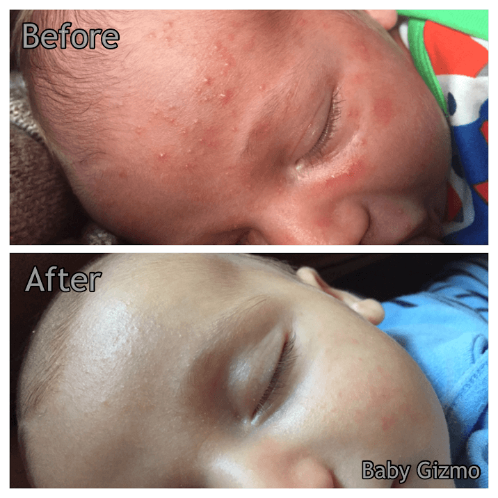 Let's Talk About Baby Acne