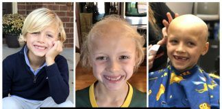 Alopecia in Kids