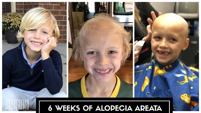 Why My Son is Bald | 6 Weeks with Alopecia Areata