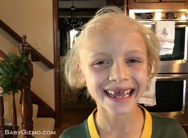 Alopecia Areata in kids