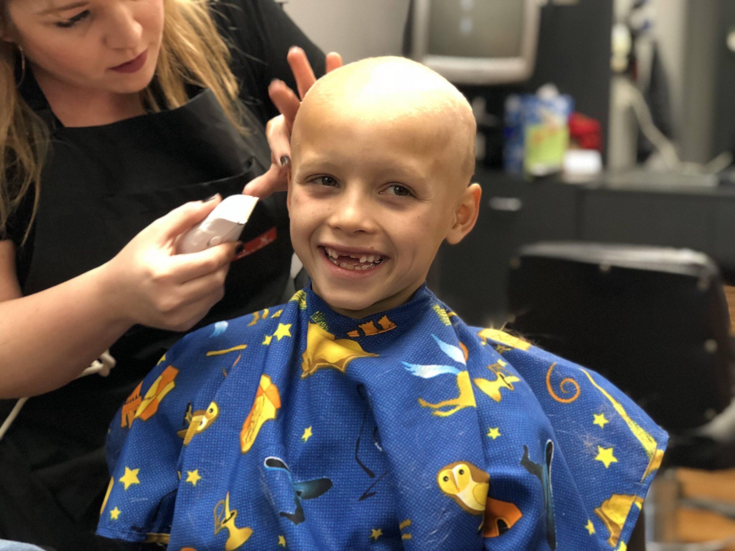 alopecia areata bald