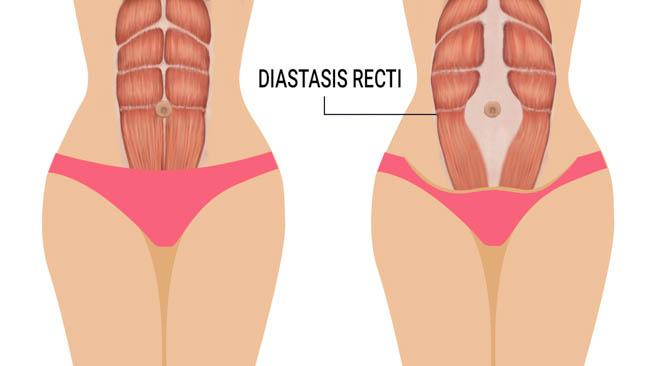 symptoms happen diastasis-recti-signs